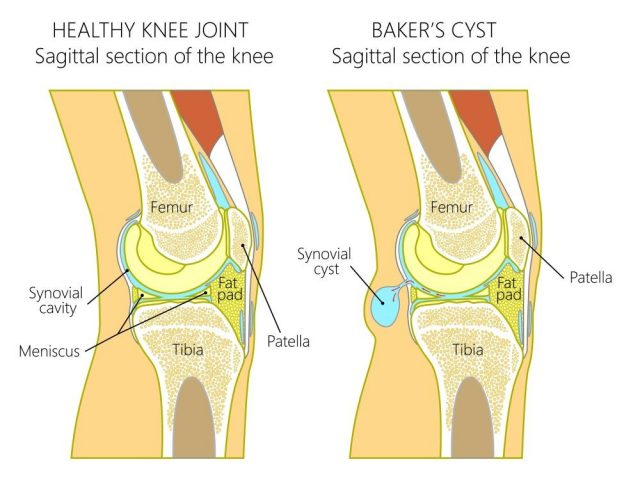Vector illustration of a healthy human knee joint and unhealthy knee with Baker's cyst