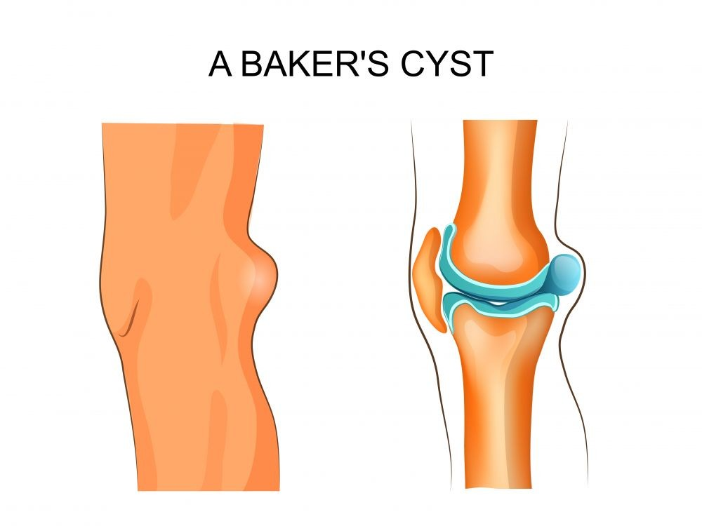Cyst Removal | causes, diagnosis, treatment options, pictures