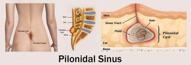 Pilonidal Sinus Cyst