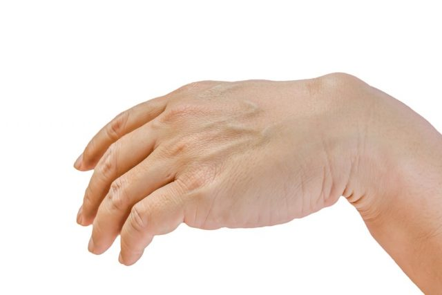 Ganglion cyst on man hand