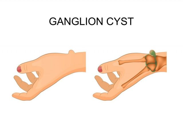 ector illustration of hygroma wrist joint, surgery
