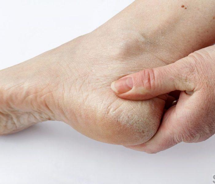 Почему пересыхает кожа на ногах и руках