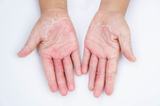 Dry hands, Contact dermatitis