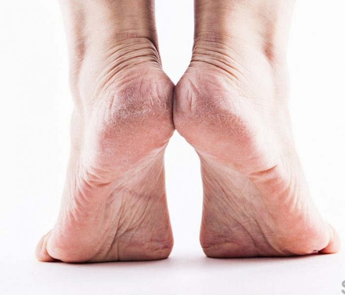 Dry skin on feet