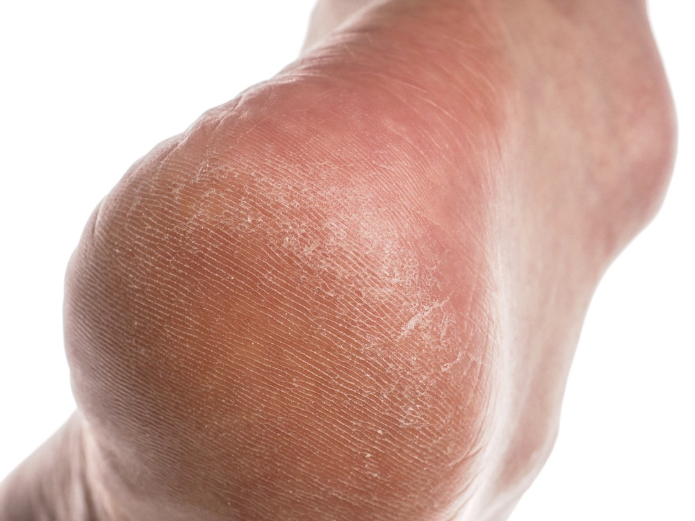 extremely dry skin on feet