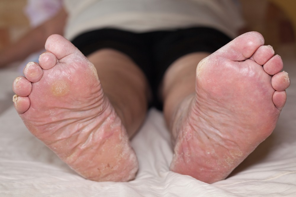 rough skin on toes