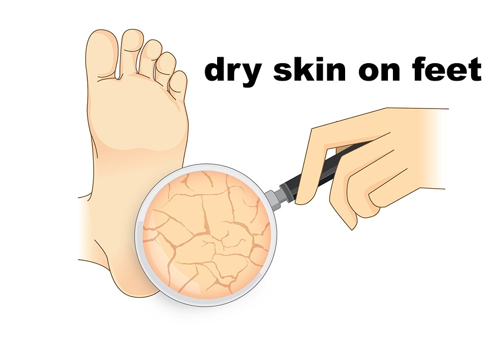 if you think dry feet are not a big deal you must have a look at the  weighty scientific word for it 'keratoderma plantare sulcatum' to give it  weightage