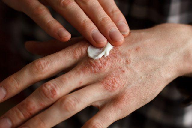 Psoriasis causes dry skin on penis