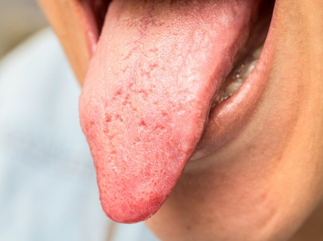 Yeast Infection causes dry skin on penis