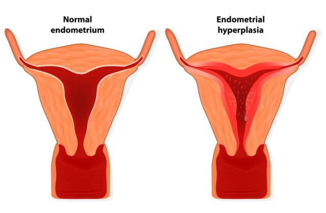 Endometriosis. Endometrial hyperplasia is an overgrowth of tissue in the endometrium uterus. The uterine lining becomes too thick which results in abnormal bleeding. Illustration