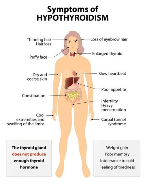Female Weight Gain: Signs and Symptoms thyroid dysfunction