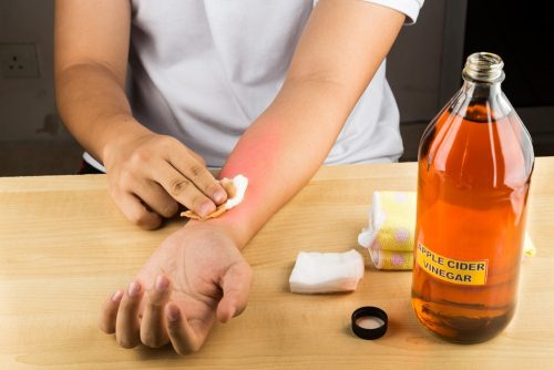 Foot rash: Apple cider vinegar