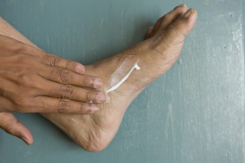 Foot rash: Moisturising
