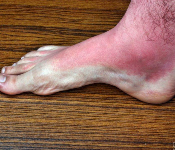 Foot rash