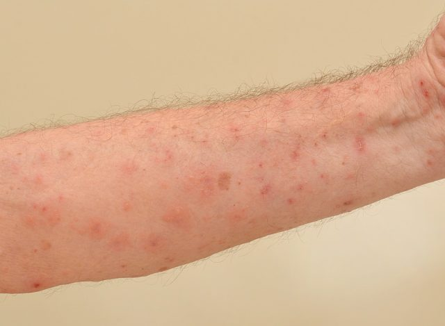 Close up of an elderly man's inner forearm arm severely infested with Scapies mites (Sarcoptes scabiei)