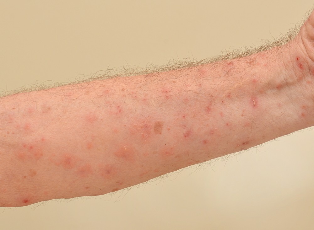 4 Most Mon Scabies Symptoms Signs And Of Human Body