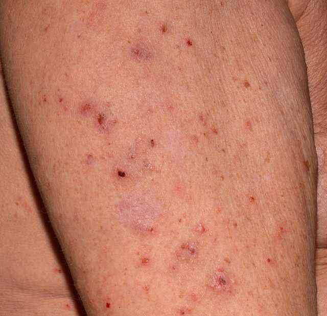 Close up of an elderly man's upper arm infested with Scapies mites (Sarcoptes scabiei)