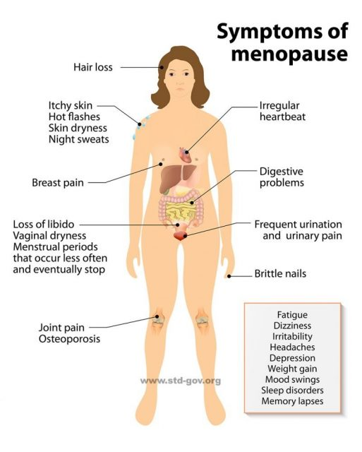 Menopause infographic. Sign and Symptoms.