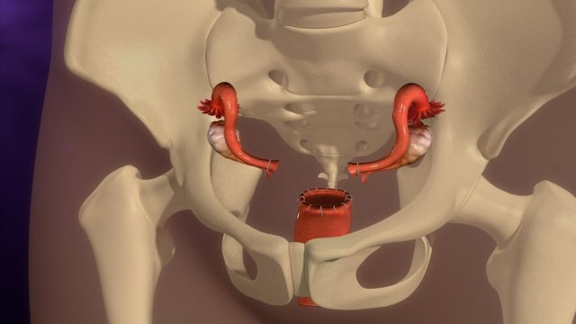 Hysterectomy 3d illustration