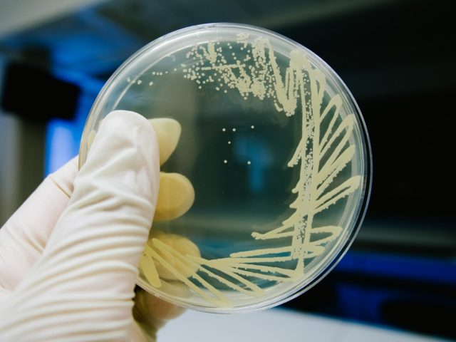 Yeast cultivation on agar medium plate in microbiology laboratory