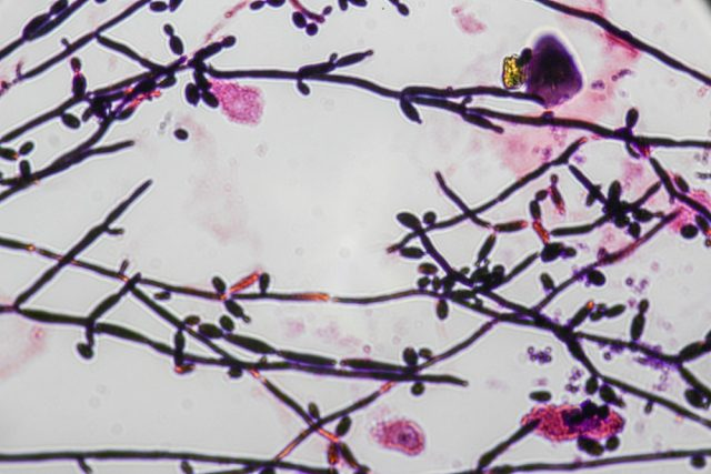 Yeast cells and Pseudohyphae yeast cells (Fungus)