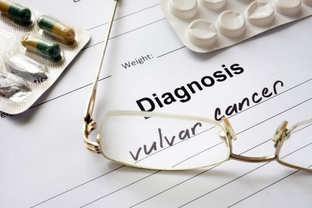 Itchy vagina: Vulvar cancer