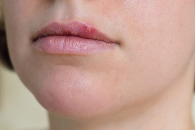 Female lips suffering from herpes