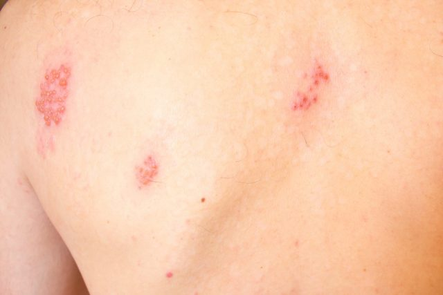 Shingles on men herpes zoster