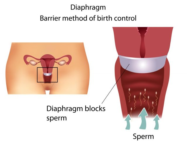 Barrier contraceptive method- Diaphragm. Detailed female reproductive anatomy