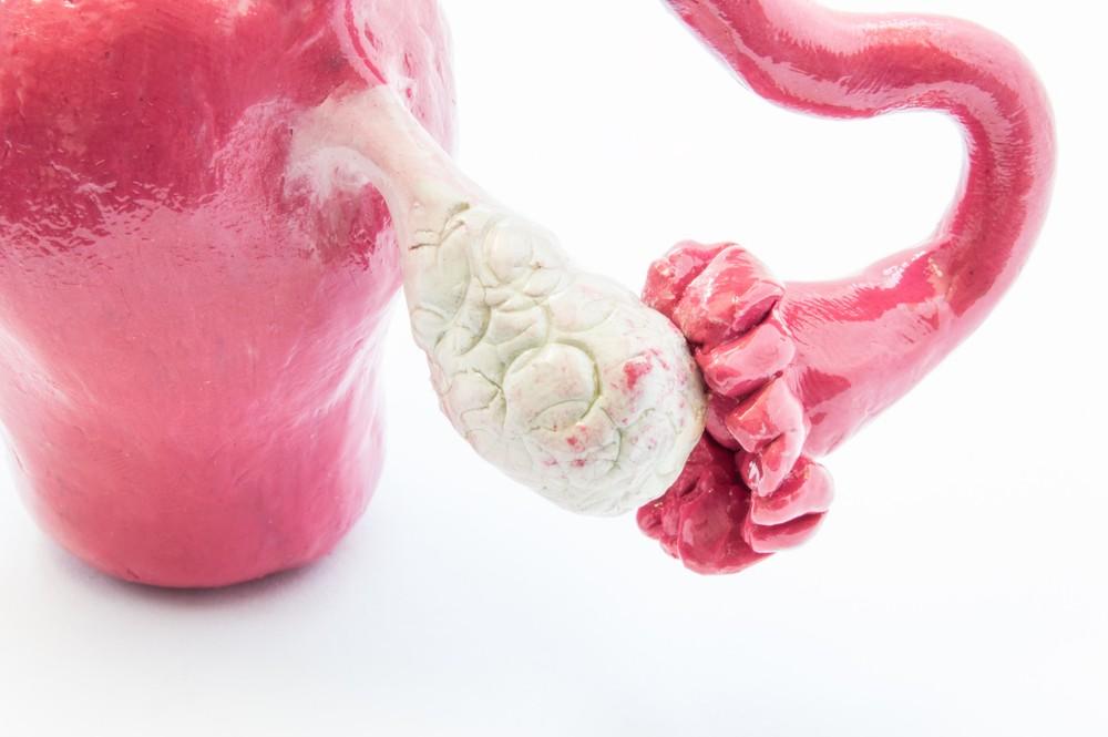 Ovary Pain | major causes, anatomy, treatment options