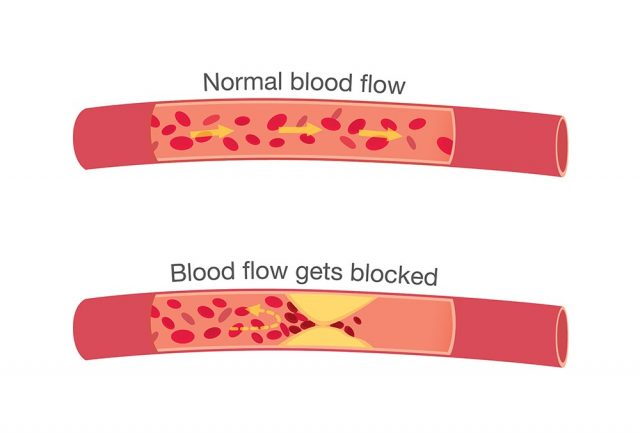 Blood flow in atherosclerosis in normal stages and when get blocked by fatty which that is cause angina and heart attack