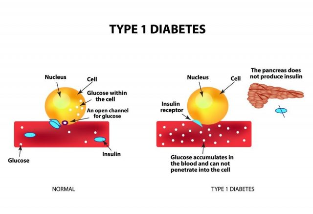 The absorption of glucose by the cell. Type 1 diabetes. Increase and decrease blood sugar. Insulin. Infographics