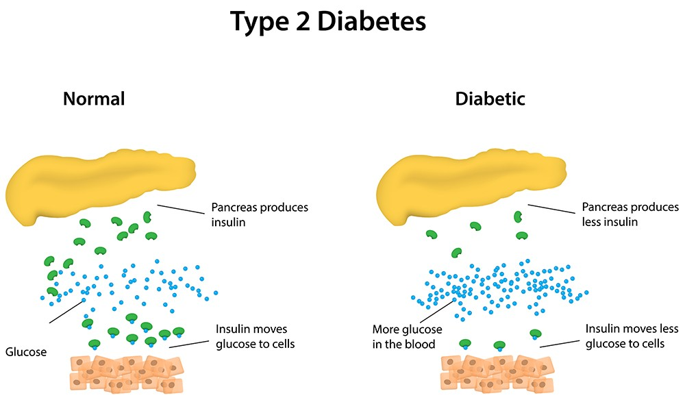 Pathophysiology of Diabetes | what is it, reasons, infographics