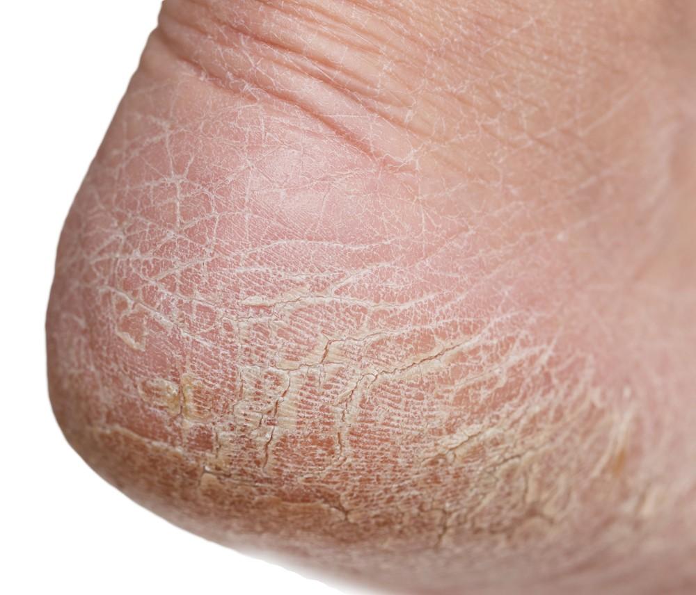 flaky skin on feet