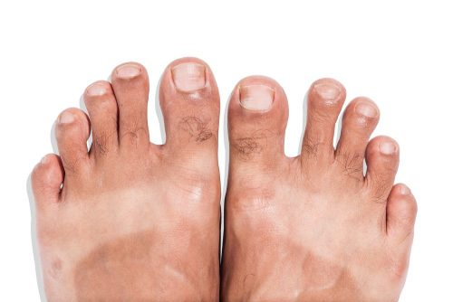 Mark of sunburn on bare foot with clipping path