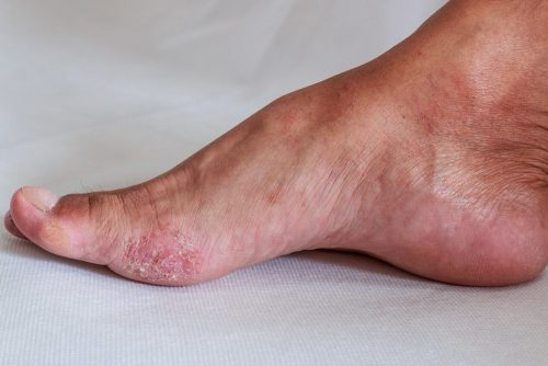 Peeling feet: foot is a fungal infection
