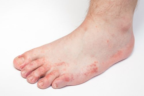Peeling feet: dermatitis leads to dry skin