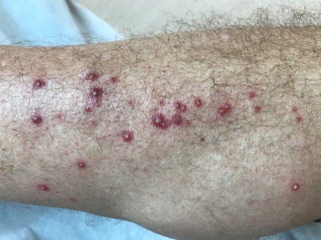 Pimple on Penis: Folliculitis