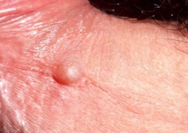 Pimple on penis: Lymphocele Lumps