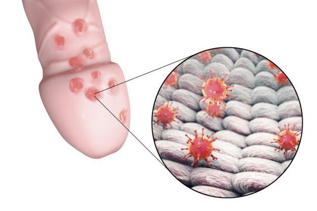 Pimple on penis: Pimples due to Warts, Genital Herpes or STD