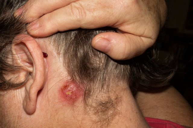 Pimple on penis: Staph infection causing pimple on penile