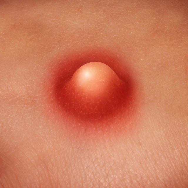 Pimple on penis: Penis Acne