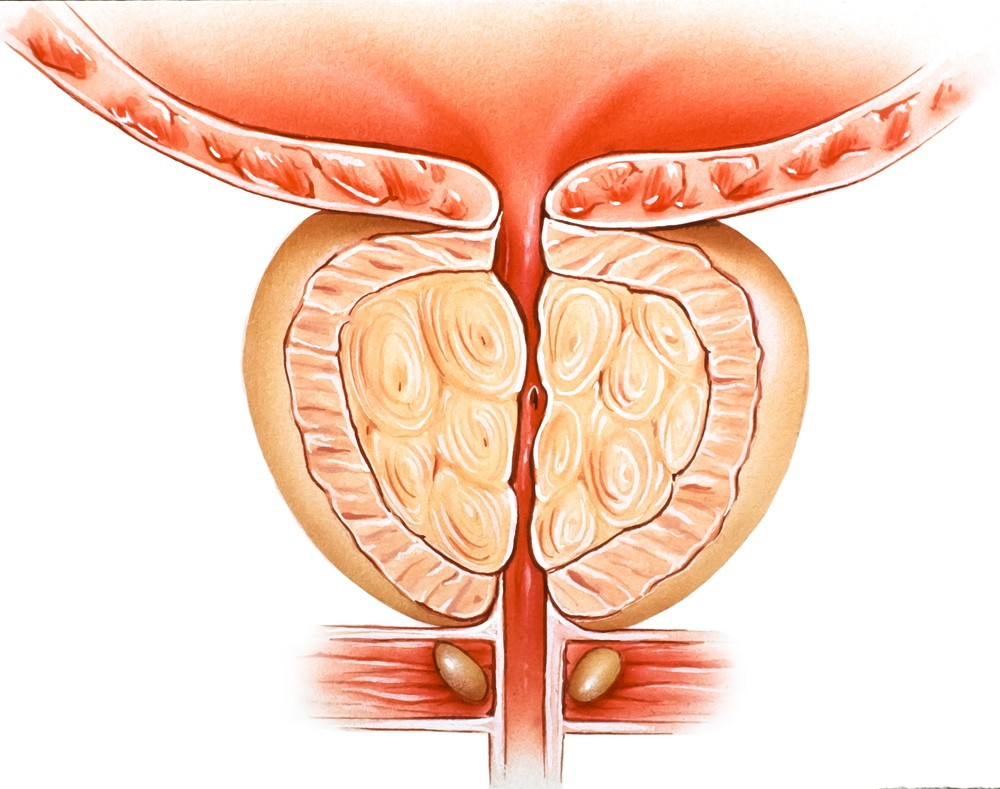 Prostate Pain Causes Symptoms Treatment Pictures