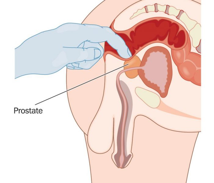 Rectal prostate examination, checking for prostatic enlargement via the rectal wall