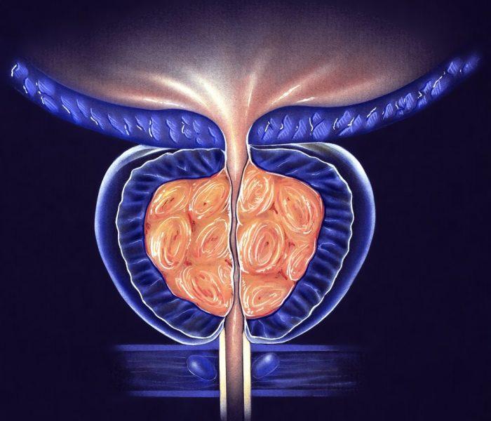 Prostate Gland - (BPH) Benign Prostatic Hyperplasia, Stage 3 - false color to highlight details.