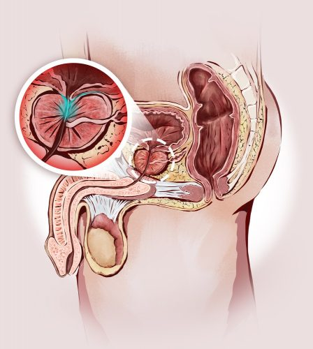 Enlarged prostate and male sexual organs: prostatitis