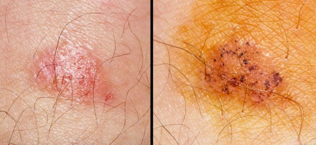 Ringworm of the skin. macro