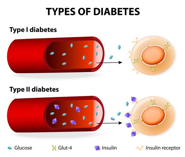 Types of Diabetes. Type 1 and Type 2 Diabetes Mellitus. Insulin-Dependent Diabetes Mellitus and Non Insulin-Dependent Diabetes Mellitus. Insulin resistance and insufficient insulin production.