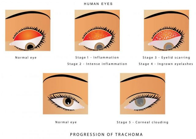 Trachoma of the eye. Progression of trachoma. Trachoma, an infection of the eye caused by Chlamydia trachomatis. Trachoma is a bacterial infection that affects your eyes