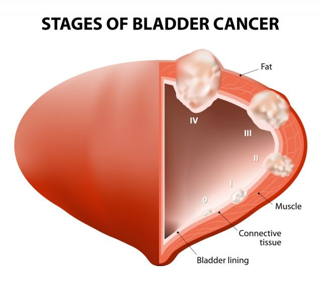 Cancer bladder. Diagram showing the stages of bladder cancer.